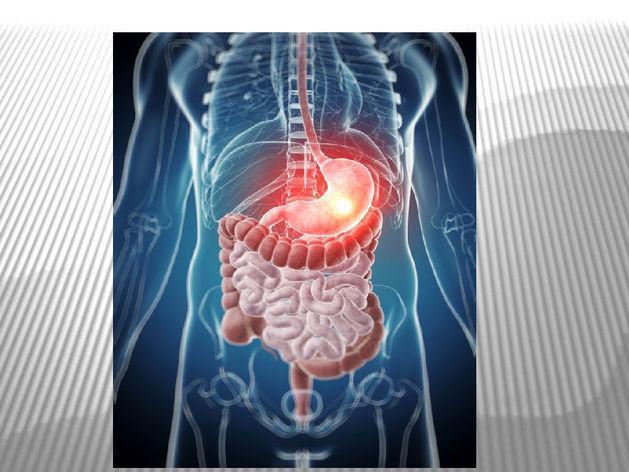 Язва, гастрит, панкреатит. Лечение заболеваний ЖКТ в Онли Клиник